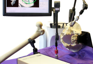 PRECISION 3D JOINT REPLACEMENT SURGERY SYSTEM EMPLOYS REO MEDICAL TRANSFORMER